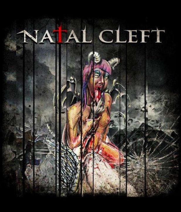 Natal Cleft